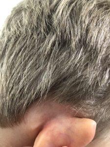 Ear eczema after